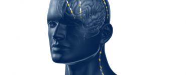 Nieuw apparaat 'diepe stimulatie brein' ingebracht in ETZ